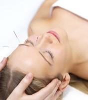 Akupunktur in Verden