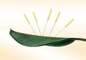 Akupunktur-Einmal-Nadeln